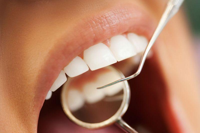 di-UAXQ دندانها کمبود ویتامین D را نشان میدهند